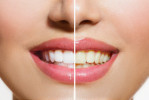歯の色素沈着